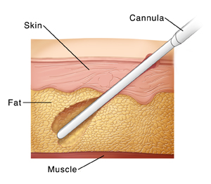 Skin layers showing cannula removing fat during liposuction.