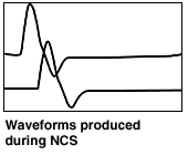 Waveforms produced during NCS