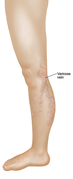 Side view of leg showing varicose veins.