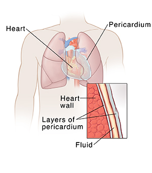 Front view of male chest showing heart and lungs with inset showing pericardium.