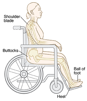 Common sites of pressure ulcers when sitting include the shoulder blade, the buttocks, the ball of the foot and the heel.