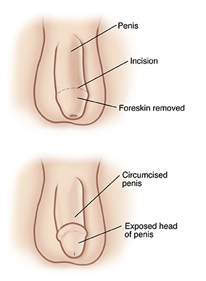 Adult circumcision aftercare