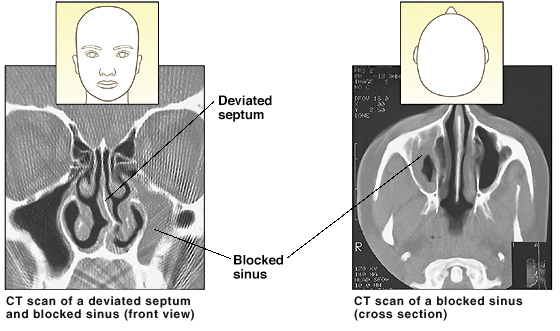 CT scan of deviated septum and blocked sinus (front view). CT scan of blocked sinus (cross section from above).